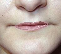 Как сделать губу светлее 72