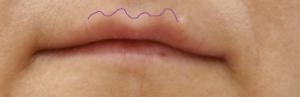 губы 1