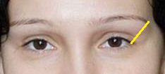 глаз-бровь 1