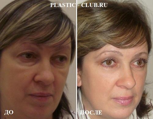 Блефаропластика полное восстановление