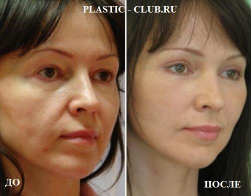 plastika-lica-kompleks