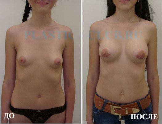 Фото до и после увеличения груди, пластический хирург Максим Осин