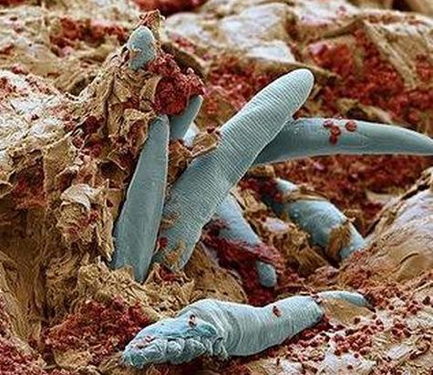 плесень Aspergillus