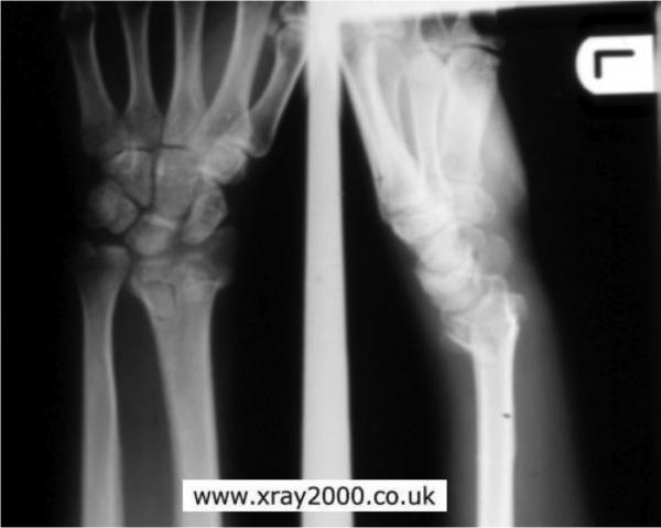 Типичный перелом лучевой кости без смещения
