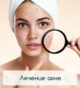 epilas.ru - лечение акне