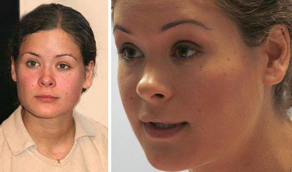 Мария Гайдар: выраженный патологический фенотип с множеством стигм дизэмбриогенеза