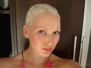 Отрастают ли после химиотерапии волосы