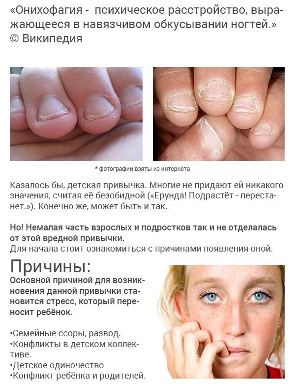 Онихофагия фото