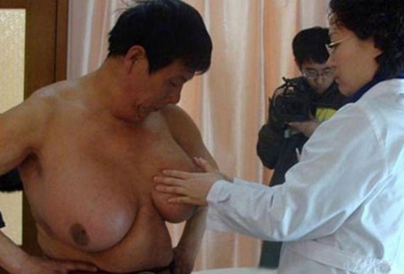 Китайцу удалили огромные молочные железы, похожие на женскую грудь. Проком