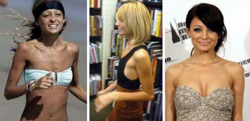 силиконовый грудь до и после знаменитые женщины фото