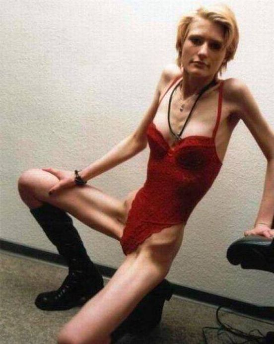 Самая худая женщина в мире фото нагишом 16 фотография