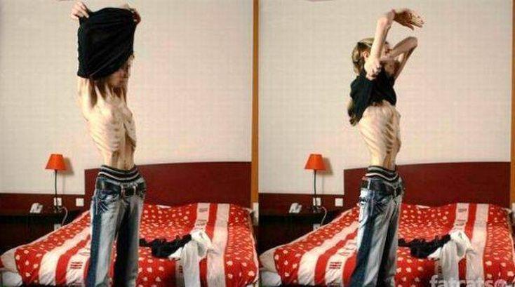 Самая худая женщина в мире