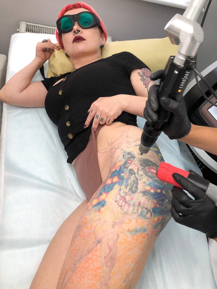 Зачем Пушба сводит татуировку: пиар или вылечилась