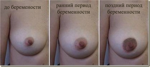 breast changes 2