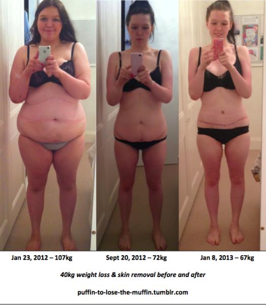упражнения рук убрать лишний жир