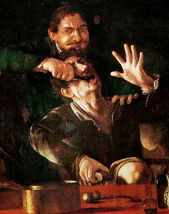 49-Неизвестный художник (приписывается Микеланджело Меризи да Караваджо) Зубодер. Около 1608–1610 (фрагмент).jpg