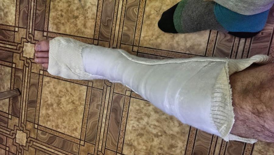 Потные ножки у девушки фото смотреть 20 фотография
