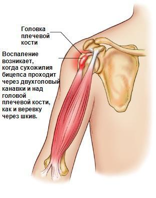 воспаление плечевого сустава таблетки