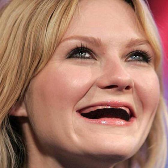 Как зубы изменили внешность знаменитостей