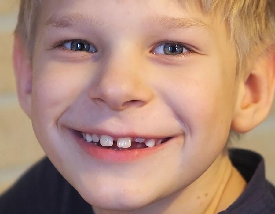 Шрамы, рубцы у ребенка Медицинская консультация 85