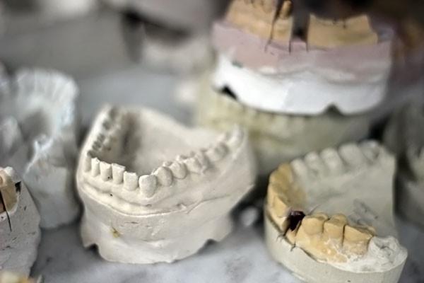 зубы0