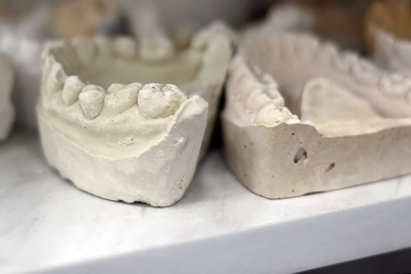 зубы5