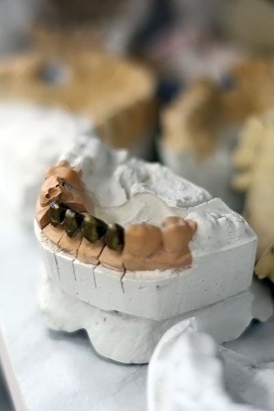 зубы4
