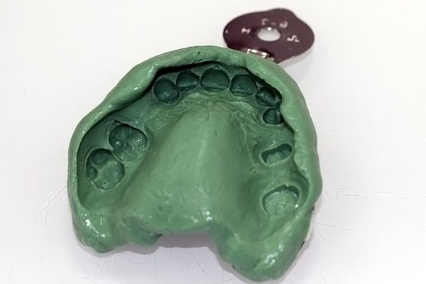 зубы2
