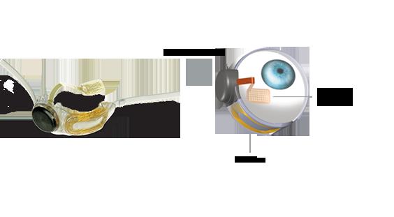 Eye[1]