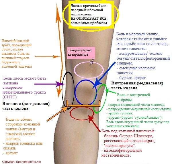 Болит колено при ходьбе как лечить в домашних условиях