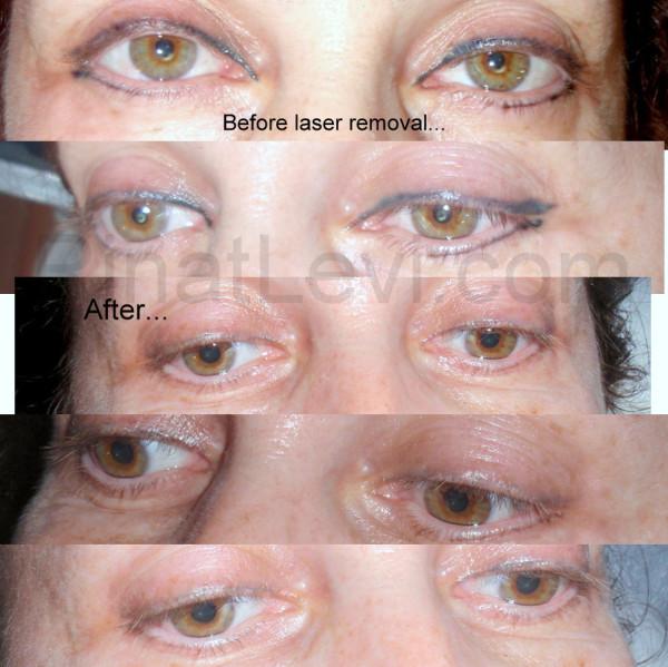 Лазерная коррекция зрения процесс