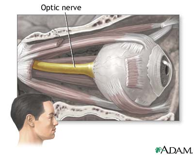 optic-nerve-atrophy