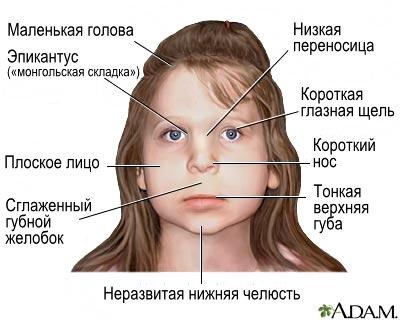 Лицевые признаки алкогольного синдрома плода (FAS)
