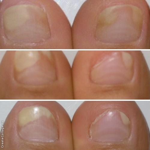Как вылечить гнойный грибок на ноге