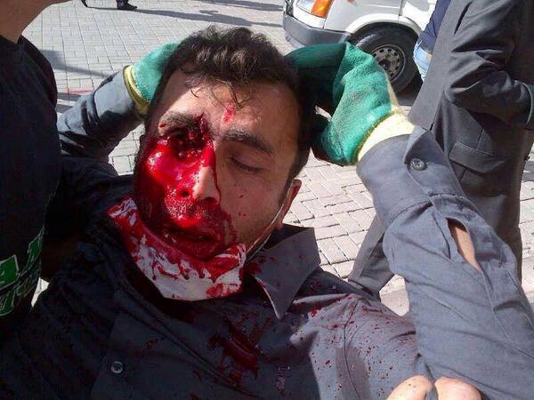 This man was shot in the eye today