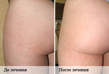 Купить голдлайн 15 мг в интернет аптеке с доставкой по россии почтой
