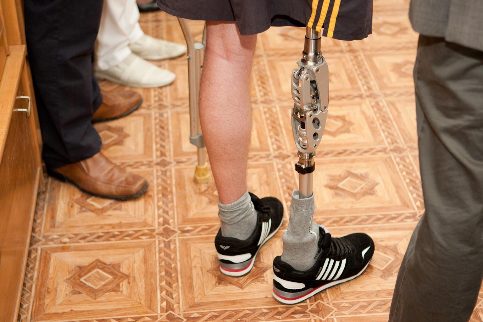 Хлопець втратив руку в решетилівці 5 фотография
