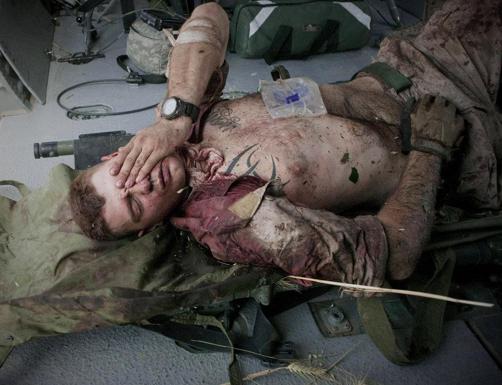 Ранение Огнестрельное фото