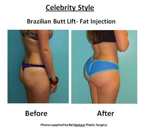 celebrity-style-butt.jpg