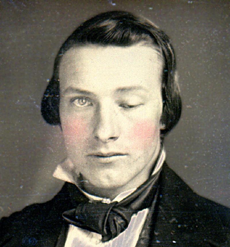Daguerreotype_ptosis_William_Bell_Army_Medical_Museum_1
