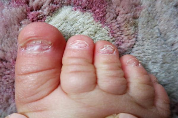 Плохие ногти на ногах у ребенка