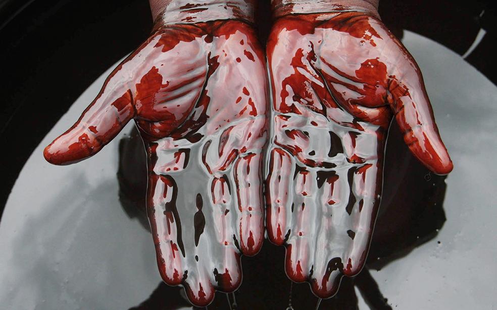 Реально кров из жопы фото 754-171