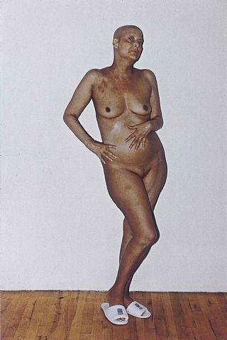 Hannah Wilke. Intra-Venus Series #3, 1992.jpg