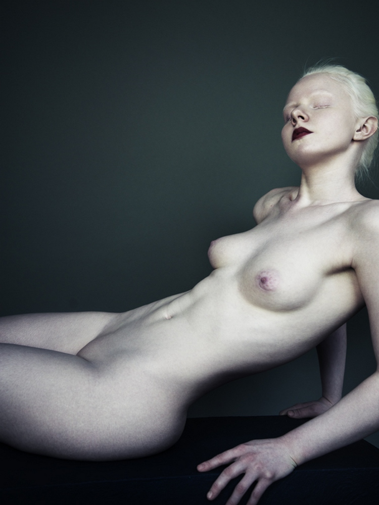 Naked black albino girls