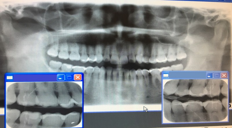 Косорукие норвежские зубные врачи