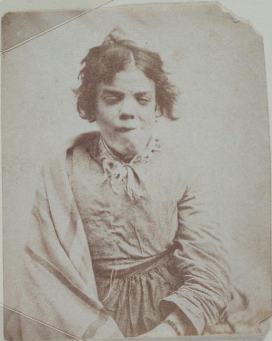 Portrait_of_a_patient,_Surrey_County_Asylum
