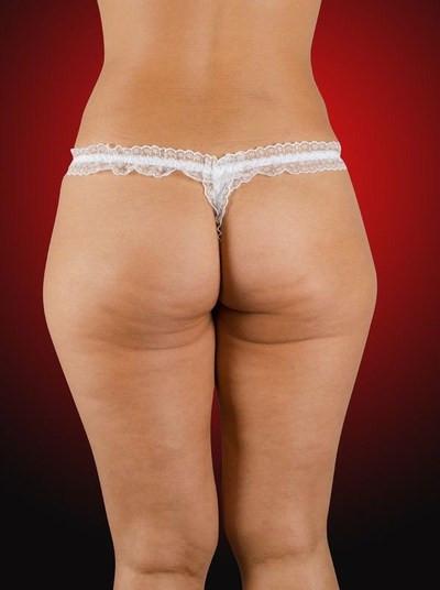 фото целлюлитных задниц