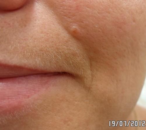 до губа слева 1