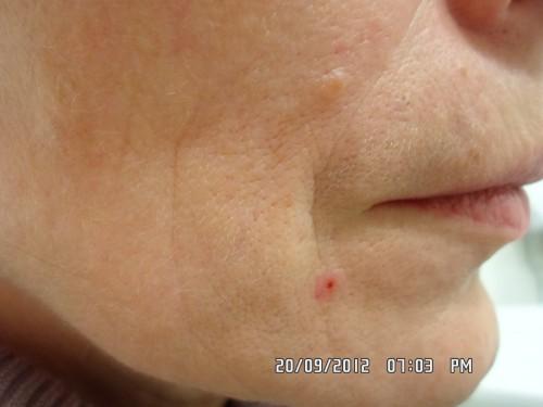 аллергия на мезотерапию фото что делать