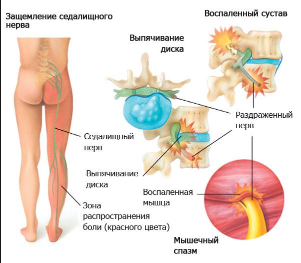 Защемление нерва в пояснице боль отдает в ногу лечение в домашних условиях